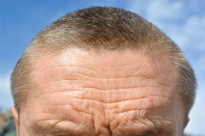 What Causes Deep Forehead Wrinkles