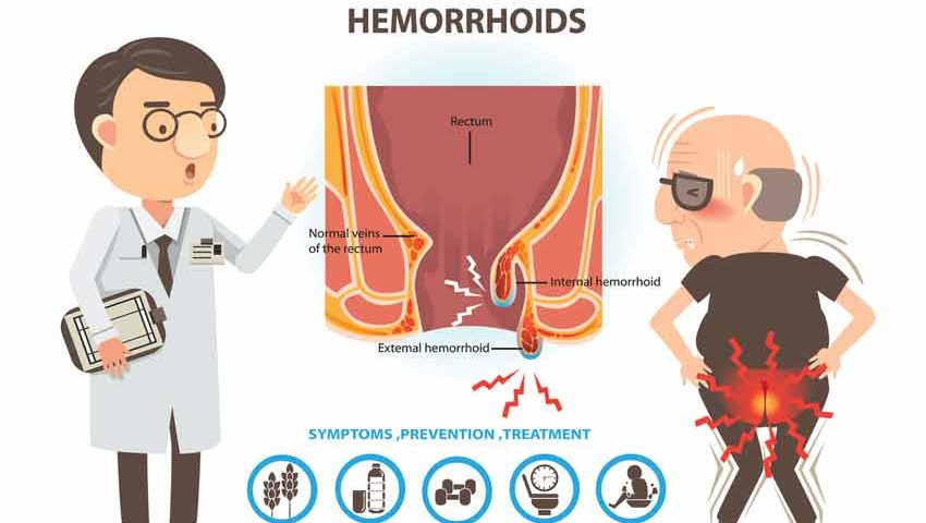 Home Remedies to Treat the Hemorrhoids