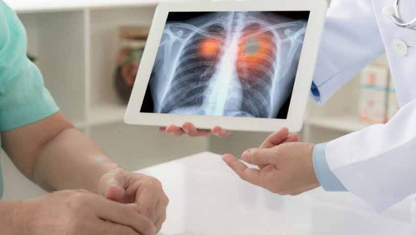 What are the Natural Cures for Lung Cancer