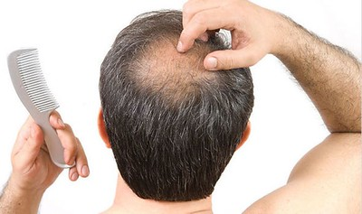 How to get rid of hair loss