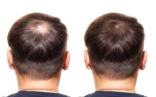 What are the causes of hair loss