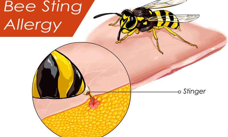 How to Relieve Pain of Bee Sting