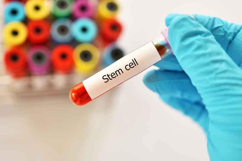 Stem Cell Transplant May Provide Cure for AIDS